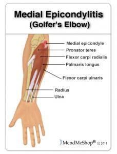 Medial Epicondylitis (Golfer's Elbow). Pronator teres, Flexor carpi radialis, Radius, Ulna, Flexor carpi ulnaris, Palmaris longus, Medial epicondyle. MendMeShop¨Ê ©2011